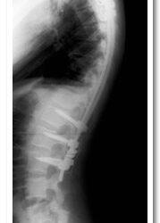 Post-operative Thoracic Kyphosis (40 deg)