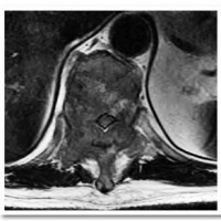 Pre-operative MRI demonstrating severe circumferential spinal cord compression at T-7