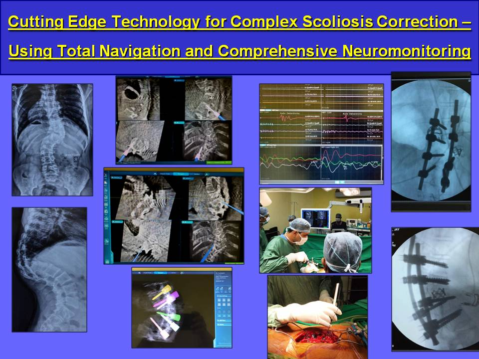 Cutting-Edge-Technology-for-Complex-Scoliosis-Correction-–-Using-Total-Navigation-and-Comprehensive-Neuromonitoring
